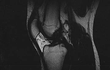 MRT (MRI) Scan